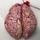 Intracerebral hemorrhage discovered during brain autopsy!