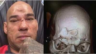 MMA fighter gets his skull caved in from a flying knee. The sound of it will stay with you for life