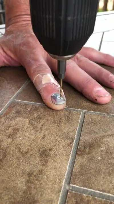 My dad self drilling a hole in his nail to relieve pressure.