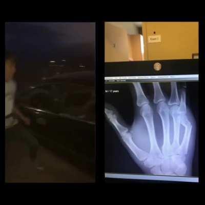 My nephew breaking his hand