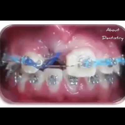 Orthodontic treatment timelapse