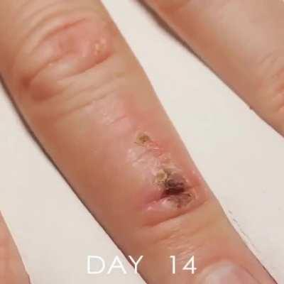 Wound healing in time lapse video