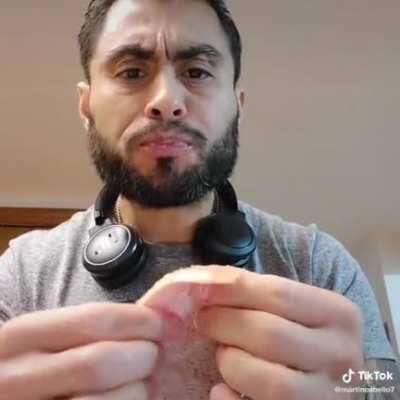 Dude eats raw salmon with live parasite to stimulate his immune system