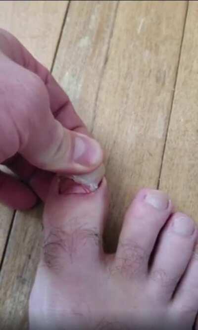 Pulling off an ingrown toenail. (Happy 10k!)