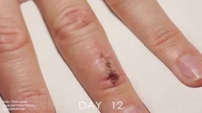 33 days of wound healing